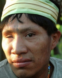 Recently-contacted Murunahua man, River Yurua, Peru. He was shot in the eye by loggers during first contact. © David Hill / Survival